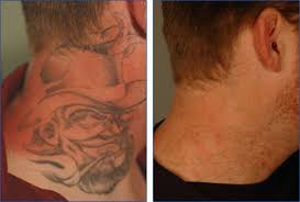 tattoo removal her blog