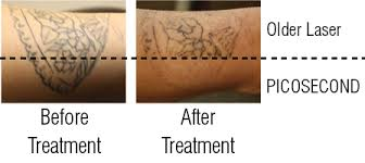 why choose picosecond laser for tattoo removal crystal fu