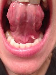 Roof Of Mouth Cancer Images by Oral Cancer Nice Swollen Floor Of Mouth 10 Zonapetir Com