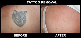 are tattoo removal creams effective blogher
