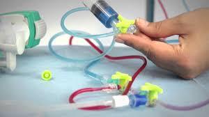 chambre implantable cip chambre implantable cip source d inspiration nouveau pose de chambre