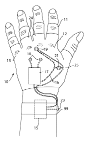 Stun Design by Patent Us6646855 Stun Glove Google Patents