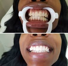 Groupon Teeth Whitening Chicago A Whiter Shade Teeth Whitening 6425 Union Square Sandy Sandy