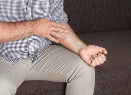 dermite du si e dermatite da stress cos è sintomi principali e cura
