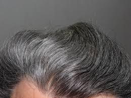 tips for men on balding and hair loss causes men u0027s fitness