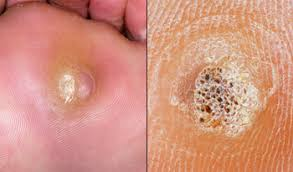 How Do You Get Rid Of A Planters Wart by Warts And Verrucas Nhs Choices