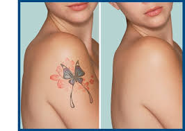 laser tattoo removal in syracuse ny and binghamton new york