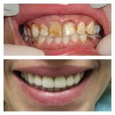 Comfort Dental Las Vegas Aura Dental 19 Photos U0026 23 Reviews General Dentistry 3774 E