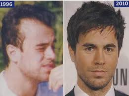 enrique iglesias hair tutorial enrique iglesias bald before and after celebrity hair
