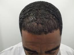 hairline restoration for black men hair restoration in african americans black hair transplant