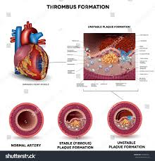 Heart Anatomy Arteries Blood Clot Formation Coronary Artery Disease Stock Vector