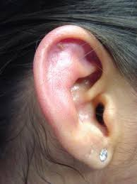 cancer of the ear cartilage ears