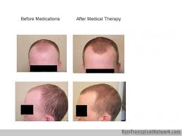 prescreened hair transplant physicians why i take a conservative approach to hair transplant surgery dr