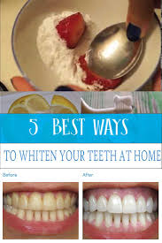 354 best diy teeth withener images on pinterest health beauty