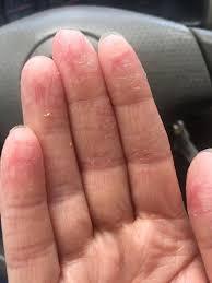 the eczema on my hand looks like a chemical burn anyone else have