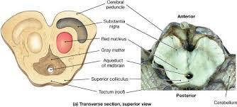 Substantia Nigra Picture Brain