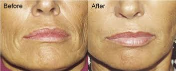 light therapy for skin before and after results aduro australia