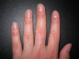 lines on the fingernails doctor answers