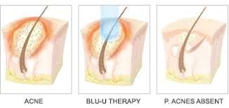blu light therapy for acne dusa pharmaceuticals inc blu u sup sup