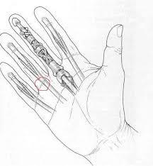 schmerzen in der handfläche ringfinger beule oder knochen mit schmerzen gesundheit arzt