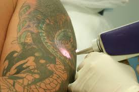 laser tattoo removal laser and skin clinics