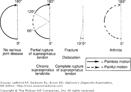 Palpate Supraspinatus Tendon Chapter 13 The Spine Pelvis And Extremities Degowin U0027s