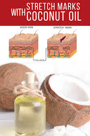 how to prevent stretch marks with coconut oil