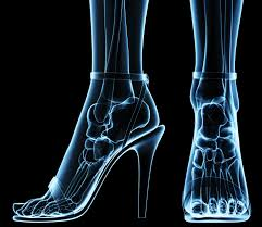 5 tips to enjoy heels without ruining your feet kc bone u0026 joint