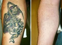 laser tattoo removal in delhi