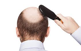 hair transplants in tj reviews mexico hair transplant cost 50 discount for non tijuana patients