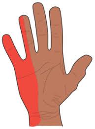 schmerzen in der handfläche ulnarisrinnen syndrom