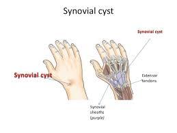 Tendon Synovial Sheath Clinical Correlation Of Forearm