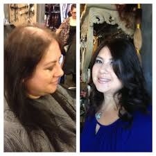 special cuts for women with hairloss baldness in women hair haircare health beauty baldness