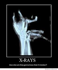 Broken Arm Meme - x ray s how else are you going to know it s broken quotes