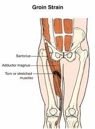 12 most common hip injuries and disorders joint essential