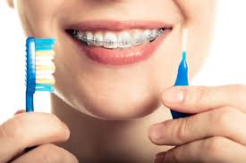 tips wearing braces archives belmar orthodontics