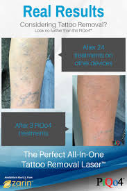 11 best tattoo removal images on pinterest do you great stories