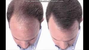 Best Hair Loss Treatments Hairstyle Best Treatment For Bald Cure Ideas U2014 Madaiworld Com