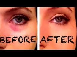 how to conceal deep set under eyes deled talk through tutorial dark eye circles