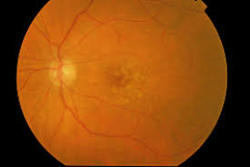 Does Macular Degeneration Always Lead To Blindness Explainer What Is Age Related Macular Degeneration