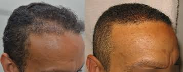 transplant hair second round draft hair transplant mentor free hair loss info by joe tillman
