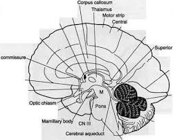 Mri Sectional Anatomy Cross Sectional Anatomy Of The Brain Cerebral Artery Guws Medical