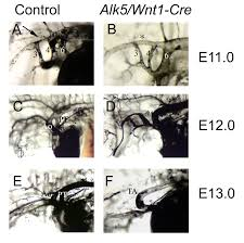 defective alk5 signaling in the neural crest leads to increased
