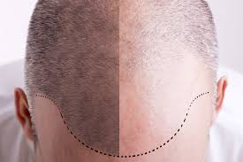 zedd clinics hgh testosterone remove belly fat hair