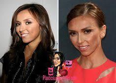 giuliana hairline giuliana rancic plastic surgery before and after giuliana rancic