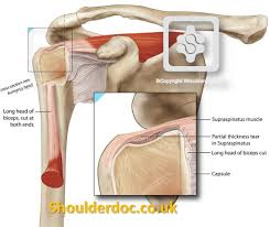 Subscapularis And Supraspinatus Partial Thickness Cuff Tears Shoulderdoc