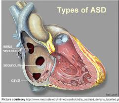 cardiology for you atrial septal defect echo pinterest