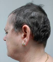 Psoriatic Arthritis And Hair Loss Alopecia Areata And Severe Psoriasis Successfully Treated With