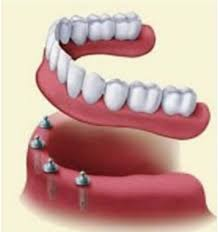 Bridge Dental Cost Estimate by For Dental Implants In Mexico Tijuana Is The Best Choice At Dr