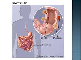 Webmd Human Anatomy Diverticulosis And Diverticulitis Ppt Video Online Download